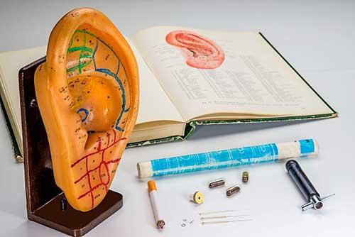 Ohr-Akupunktur